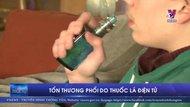 Tổn thương phổi do thuốc lá điện tử