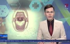 Đắk Nông ghi nhận 33 trường hợpmắc bệnh bạch hầu