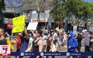 Nỗ lực chống kỳ thị người gốc Á tại Mỹ